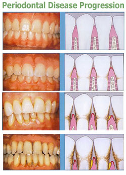 Dr Vivian Bae Dds Periodontal Disease Scaling And Root Planing
